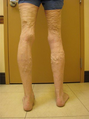 RF Ablation/Sclerotherapy – Case 2