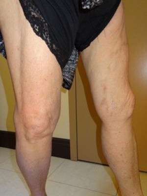 RF Ablation/Sclerotherapy – Case 3